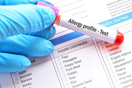 allergic-allergy-test-wp